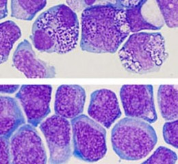 Top: Acute myeloid leukemia cells presenting anomalies in standard growth conditions.