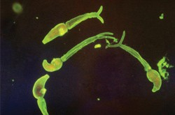 Schistosoma in its larval stage of life.