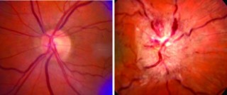 On the left is a normal optic nerve (light circle at center) and on the right is the optic nerve swelling seen in IIH.