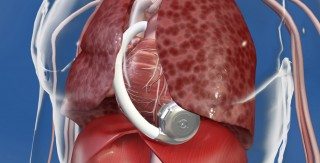 The new HeartWare left ventricular assist device is implanted through a minimally invasive approach and sits inside the chest, connecting directly to the heart.
