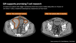 CT scans of a patient with stage 4 lymphoma before (left) and five months after (right) treatment with T cells show how tumors melted away.