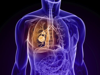 A novel compound synthesized at City of Hope, called COH-SR4, can target and treat drug-resistant lung cancers, researchers reported at the AACR 2014 Annual...