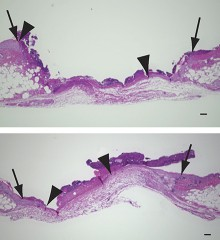 Three days after injury, wounds are healing faster in diabetic mice treated with a synthetic form of BLT2 (bottom) compared with untreated mice (top)....