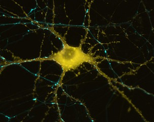 Human neuron showing actin formation in response to stimulation.