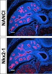 The developing lung has similar expression patterns (red) of Nkx2-1 (bottom) and the novel long non-coding RNA NANCI (top), which promotes Nkx2-1 expression....