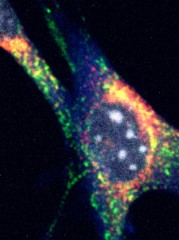 Mouse fibroblast shows Clec16a (red), the lysosome protein Lamp1 (green), the autophagosome protein LC3 (blue), and DNA (gray). The yellow overlap of the red and green...