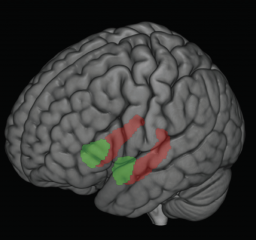 Different forms of early life stress, such as child maltreatment or poverty, impacted the size of two important brain regions: the hippocampus (shown in red)...