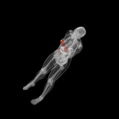 Simulated 3D dose measurements of the breast, showing the dose imparted to the whole body. The dose is shown on a red and yellow color map, where yellow...