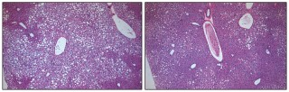 In the liver tissue of obese animals with type 2 diabetes, unhealthy, fat-filled cells are prolific (small white cells, panel A). After chronic treatment...