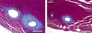 Cardiac fibrosis was dampened in mice treated with 18-HEPE (right) compared with a control group (left).