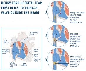 Henry Ford Hospital Team First in U.S. to Replace Valve Outside the Heart