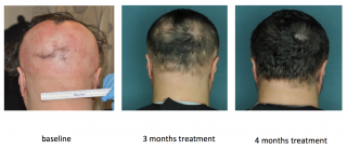 FDA-approved drug restored hair growth in a research subject with alopecia areata. Left to right: at baseline, at 3 months, and at 4 months of treatment.
