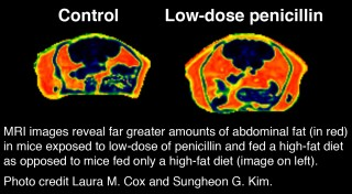 Female MRI