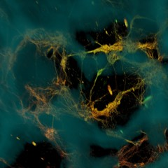 Confocal microscope image of neurons (greenish yellow) attached to silk-based scaffold (blue). The neurons formed functional networks throughout the scaffold...