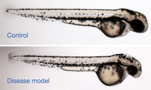 Newswise: For One Family, Zebrafish Help Provide Genetic Answers
