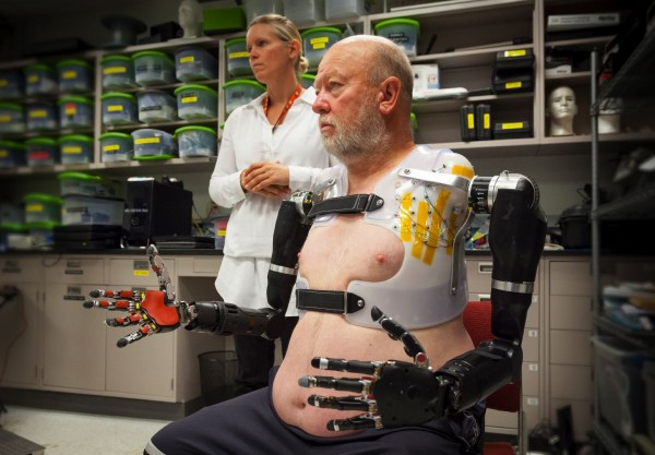 Les Baugh tests out the Modular Prosthetic Limbs as APL prosthetist Courtney Moran looks on.
