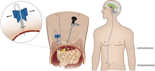 Newswise: Using Laparoscopy For Ventriculoperitoneal Shunt Placement