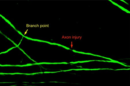 Newswise: Spinal Cord Axon Injury Location Determines Neuron's Regenerative Fate