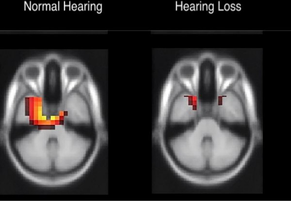Adults with early-stage age-related hearing loss (right) show decreased activation of the hearing portion of the brain compared with normal hearing age-matched adults (left).