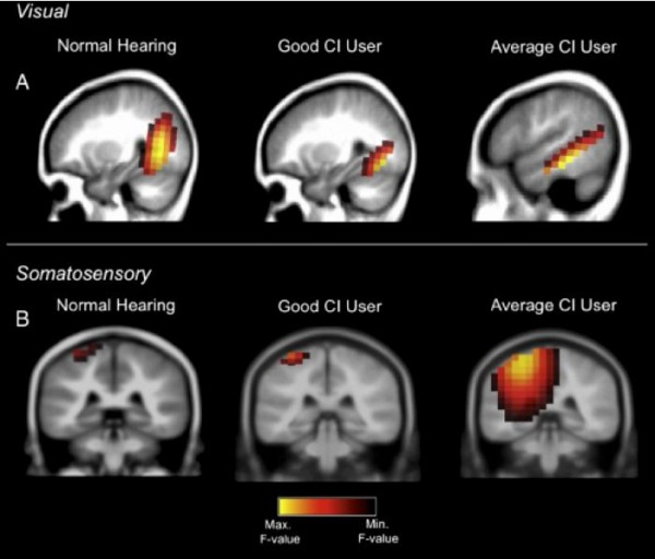 A good performer with the cochlear implant shows normal brain activations in response to visual and somatosensory (touch) stimulation. A cochlear implant user who performs averagely, however, shows additional recruitment of hearing brain centers for processing vision and tactile stimulation.