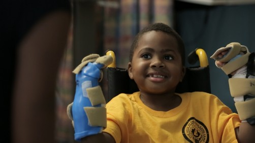 Newswise: World's First Bilateral Hand Transplant on a Child Performed at The Children's Hospital of Philadelphia