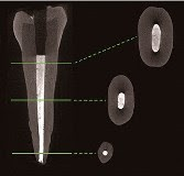 A new root canal filler containing nanodiamonds could help prevent re-infections.