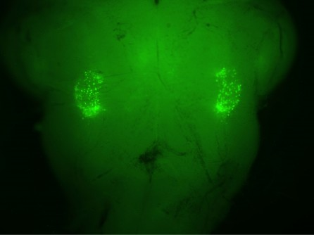 Newswise: UCLA–Stanford Researchers Pinpoint Origin of Sighing Reflex in the Brain