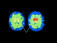 Brain scans of a representative patient showing Dopamine transporter binding (red) before and after 3-month NAC treatment.