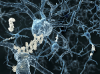 neurons-amyloid-plaques-alzheimers-iStock_21336436_MEDIUM002WEB.JPG