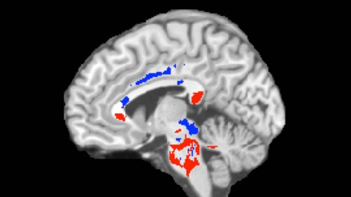 Newswise: Concussion Outcome Predicted Using Advanced Imaging