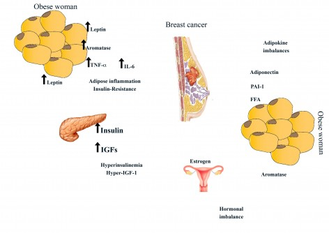 Newswise: The Complex Crosstalk Between Obesity and Breast Cancer