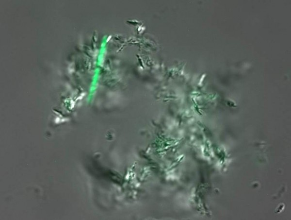 In a new diagnostic test, a green glow highlights live TB cells against a field of other debris in a saliva sample.