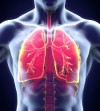 Lungs_Tuberculosis_Infection_iStock-505047773SMALL.jpg