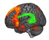 fMRIbrain_image_1.png