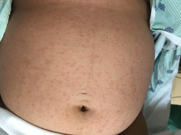 This is a rash on patient's stomach.
