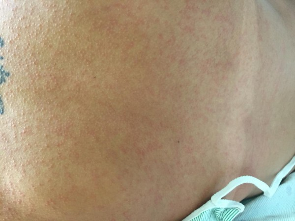 This is a rash on patient's back.