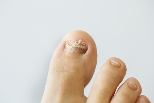 Newswise: Six Ways to Prevent Toenail Fungus