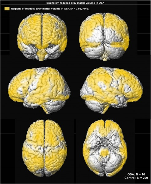 Cortical regions of significantly reduced regional grey matter volume in OSA over control