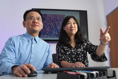 Newswise: Bioinformatics Computer Model Predicts Deadliest Lung Cancers