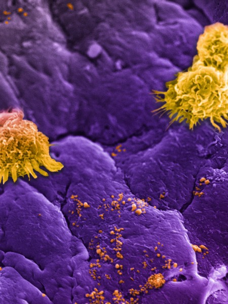 Circulating white blood cells, commonly referred to as leukocytes (large yellow clusters), can be seen lining an inflamed vessel wall along with leukosomes (small yellow speckles). Leukosomes, designed to mimic white blood cells, go unnoticed as they accumulate at the inflamed vessel (purple background), allowing them to concentrate their therapeutic payload at the target site.