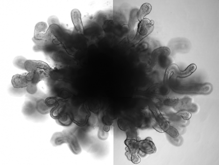 "Newswise: New Lung ""Organoids"" in a Dish Mimic Features of Full-Size Lung"