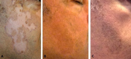 Newswise: MKTP Surgery Has Long-Term Benefit for Restoring Skin Pigmentation in Vitiligo Patients