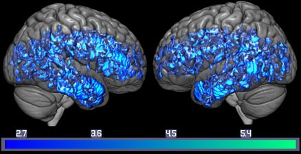 A brain showing decreases of serotonin transporters (blue) in the whole mild cognitive impairment group compared to the whole healthy control group.
