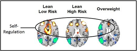 Increased brain activity when viewing food cues shown in yellow, orange, and red. Decreased activity is shown in blue. Activations are present in circuits that support self-regulation and attention (frontal cortex, anterior cingulate, and basal ganglia).