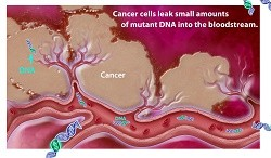 Newswise: Combined DNA and Protein 'Liquid Biopsy' for Early Pancreatic Cancer Better Than Either Alone
