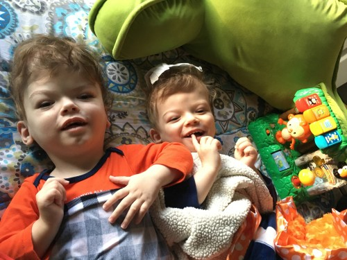"Newswise: Thriving at Home: One Year After a Marathon Surgery to Separate Them, Formerly Conjoined Twins Jadon and Anias McDonald ""Achieve New Milestones Every Day"""