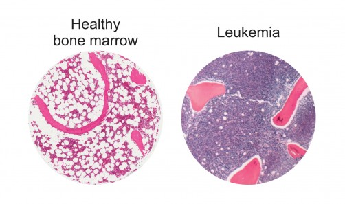 Newswise: Bolstering Fat Cells Offers Potential New Leukemia Treatment