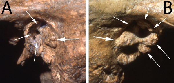Two views of the ear canal of the Neandertal fossil Shanidar 1 show substantial deformities that would likely have caused profound deafness. (