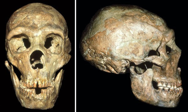 The skull of a Neandertal known as Shanidar 1 show signs of a blow to the head received at an early age.