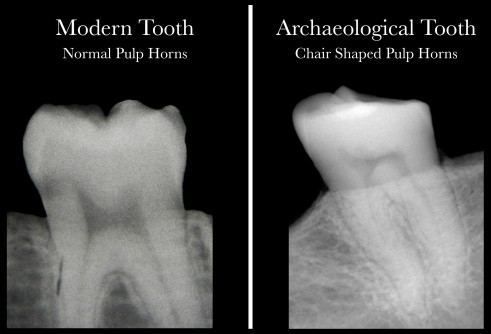 Newswise: Archaeological Researchers Find That Dental X-Rays Can Also Reveal Serious Vitamin D Problems in Living Patients